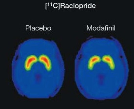 raclopride PET following modafinil